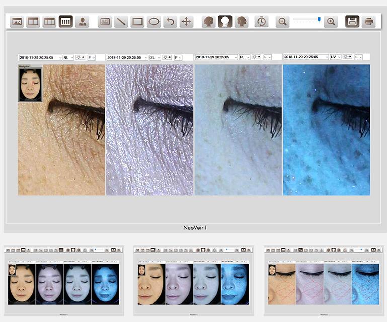 4つの画像を並べて表示します。気になるポイントを拡大して確認することができます。